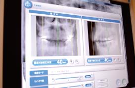 アーム型X線CT診断装置